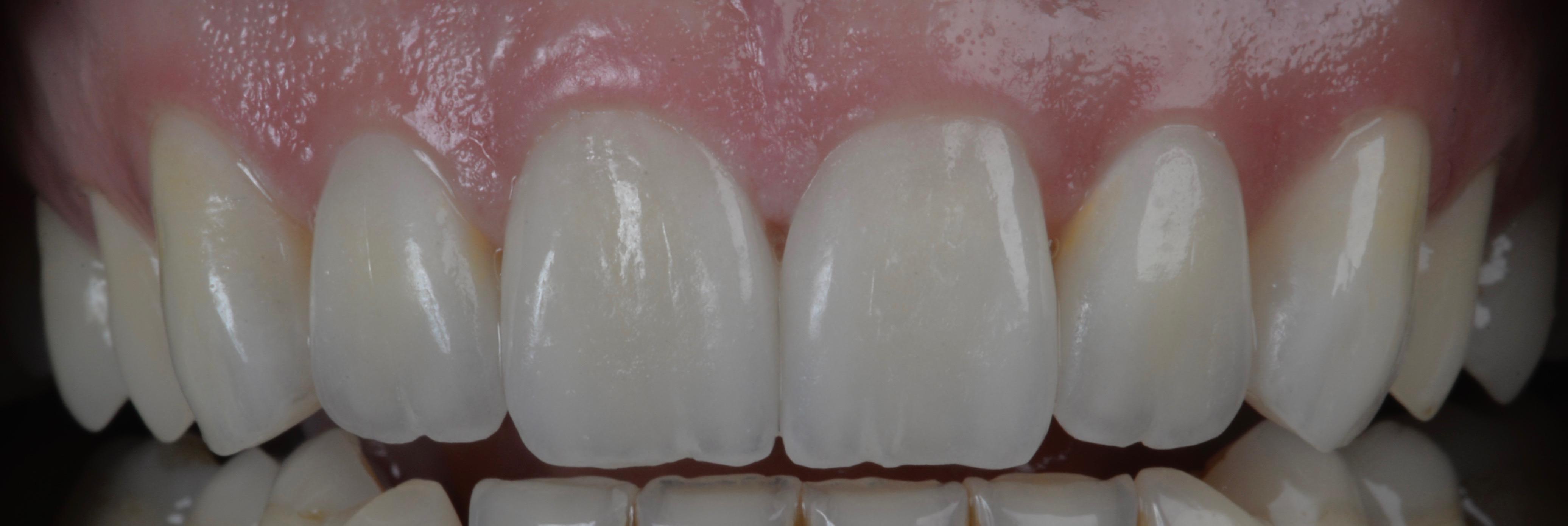 dentiste facettes ceramiques geneve