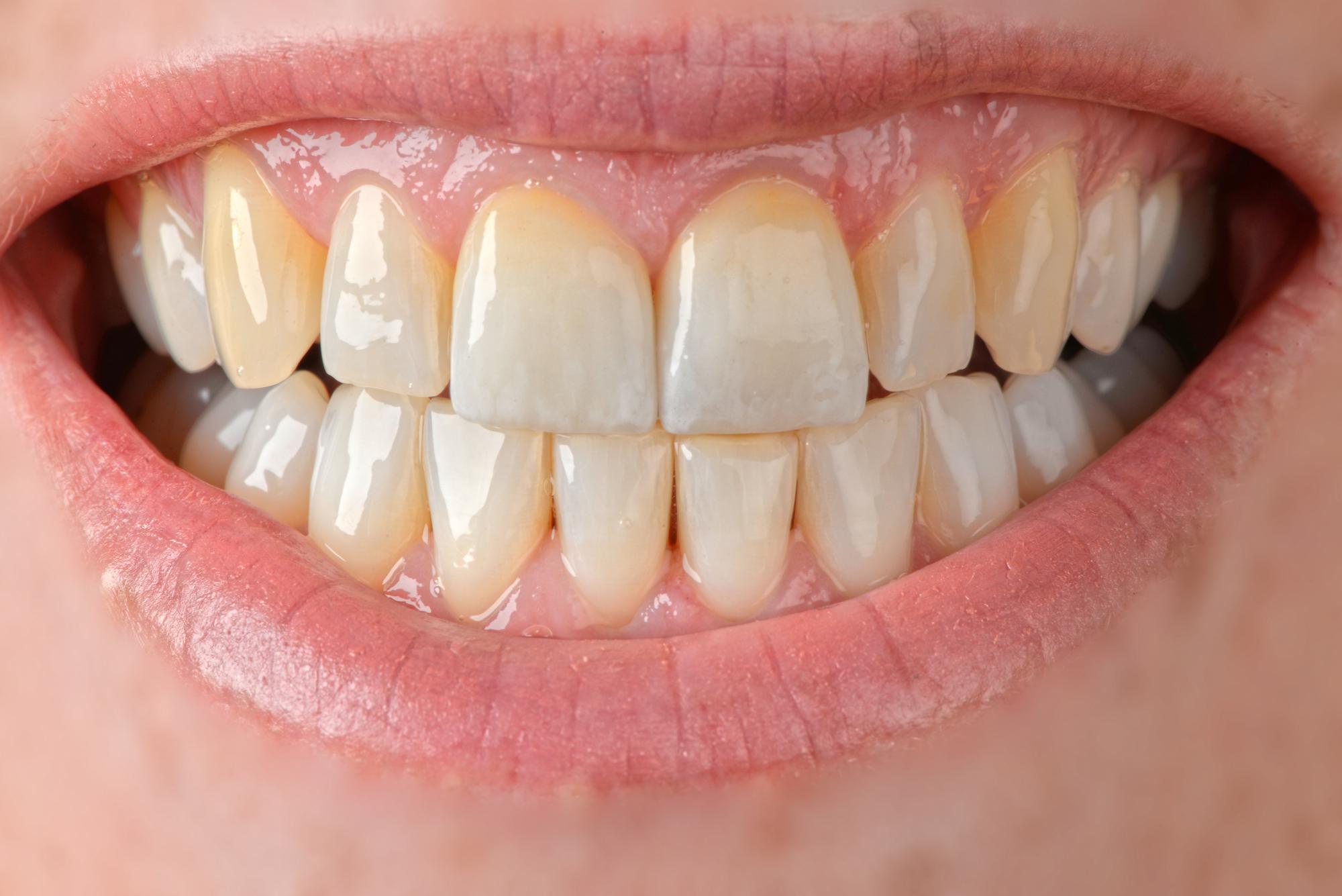facettes veneers genève dentiste